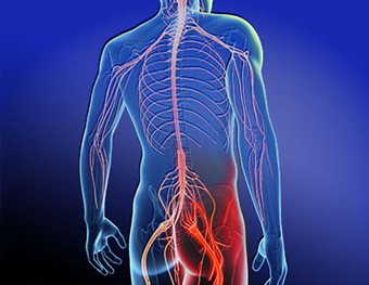 Newmarket sciatica treatment